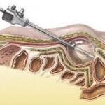 Ενδοσκοπική εξωπεριτοναϊκή επέμβαση βουβωνοκήλης (TEP)