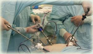 Λαπαροσκοπική Χειρουργική Παχυσαρκίας