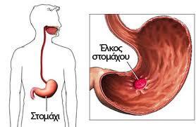 Έλκος στομάχου