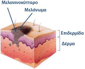 Μελάνωμα δέρματος