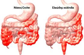 Νόσος Crohn, Ελκώδης κολίτιδα