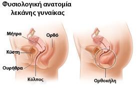 Ορθοκήλη